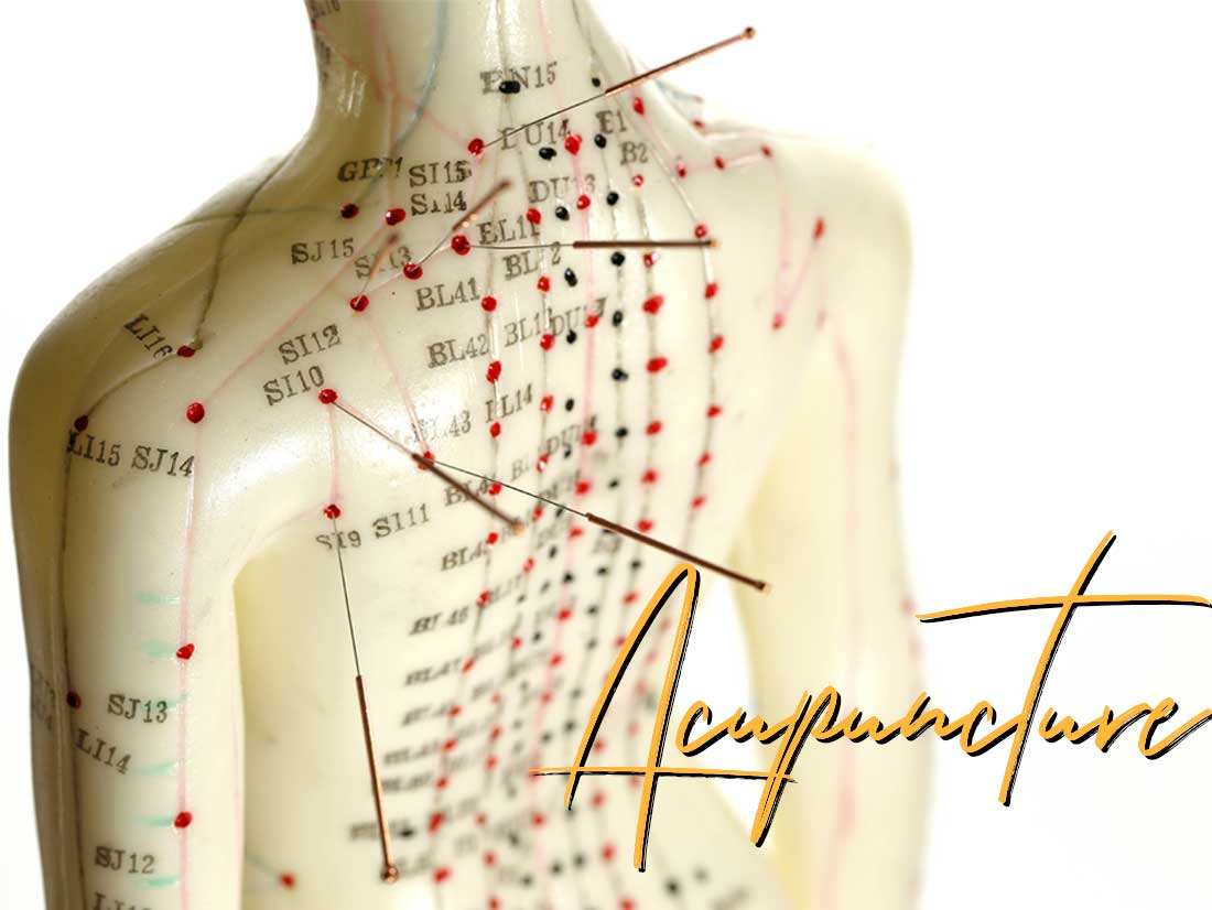 west orange acupuncture | Montclair New jersey naturopath