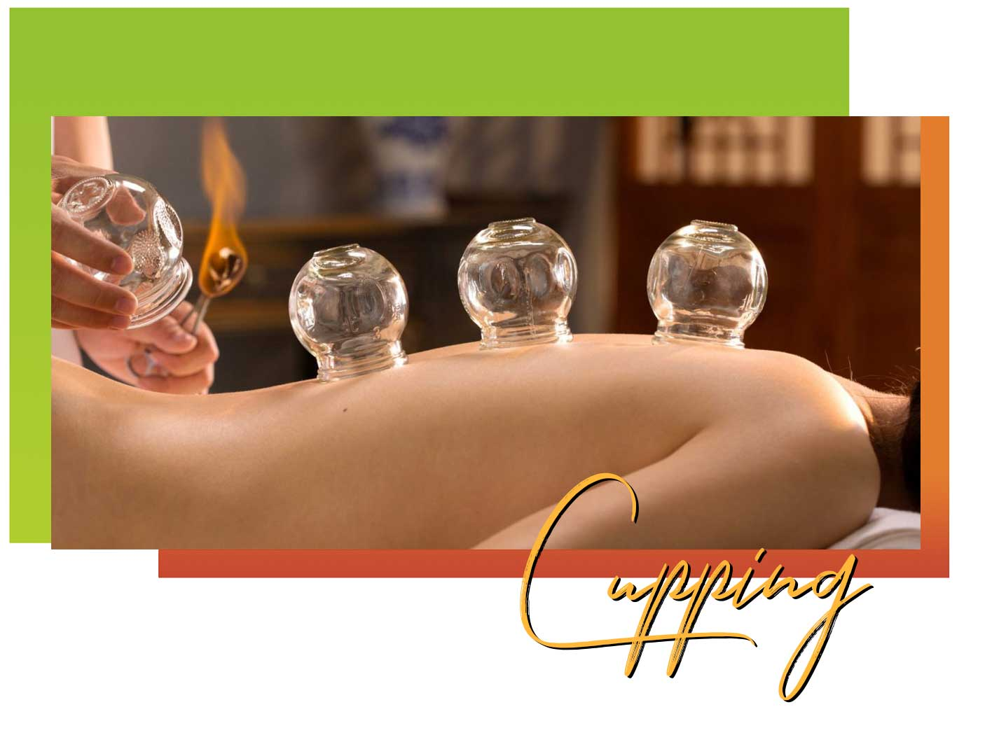 cupping chinese medicine acupuncture