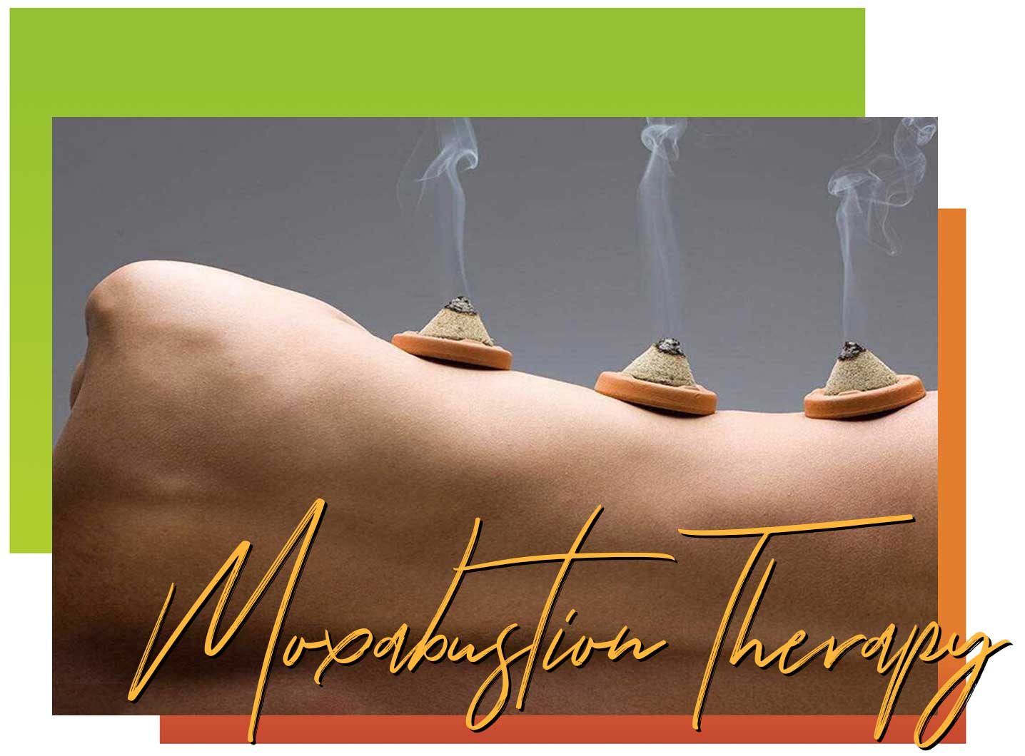 moxibustion therapy | acupuncture essex county